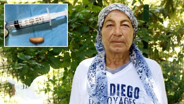 Burun akıntısı şikayetiyle hastaneye başvuran kadının sinüslerinden 11 kurtçuk çıktı