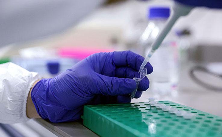 Antalya Hıfzıssıhha Kurulu yetkililerinden kalabalıklara PCR testi yapılması kararına yönelik açıklama